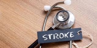 Kenali Gejala Penyakit Stroke Lebih Awal